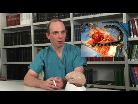 An Overview of Brain Surgery and the Current Understanding of Brain Function