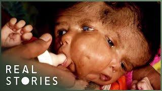 Nonton The Girl With Two Faces  Medical Documentary    Real Stories Film Subtitle Indonesia Streaming Movie Download