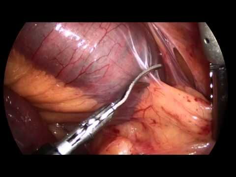 extensive adhesiolysis for small bowel obstruction