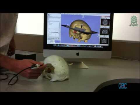 Neurosurgery browser