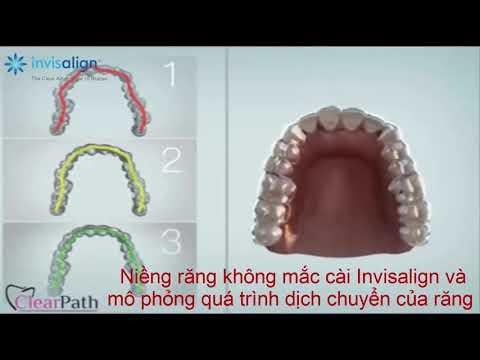 Invisalign Việt Nam - Mô phỏng phương pháp niềng răng không mắc cài Invisalign