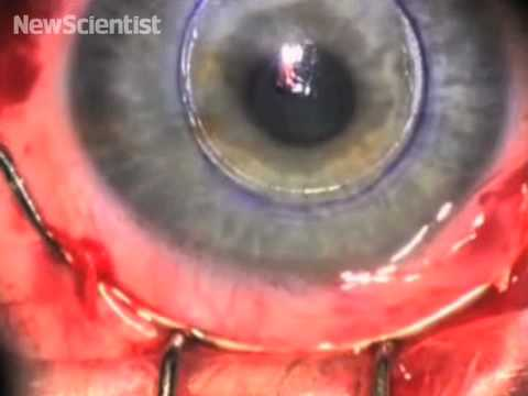 Biosynthetic Cornea