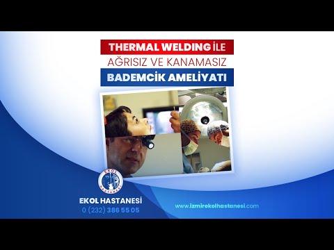 Thermal Welding ile Ağrısız ve Kanamasız Bademcik Ameliyatı - İzmir Ekol Hastanesi