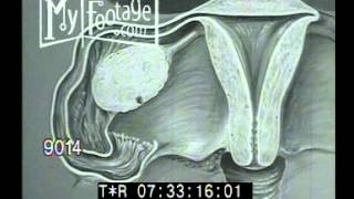 Stock Footage - 1950's Sex Education, Reproductive Organs