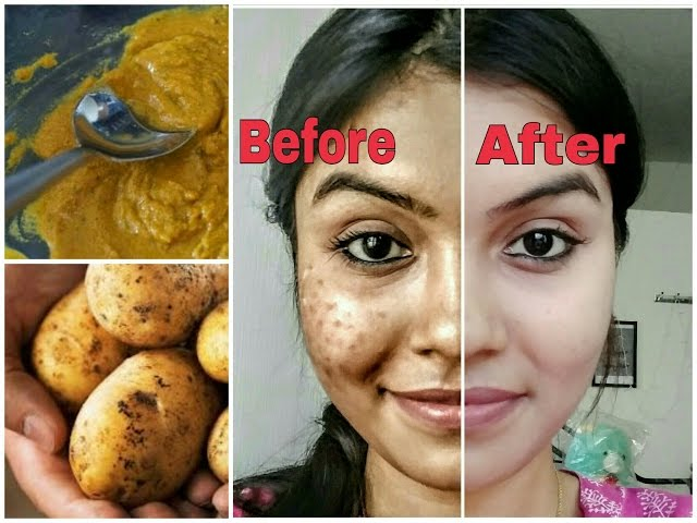Image result for Remove dark spots in just 7 days