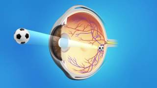 Cataract Phaco with Toric Lens
