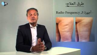 Cellulite Treatment (radio frequency)
