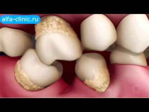 К чему приводит потеря даже одного зуба