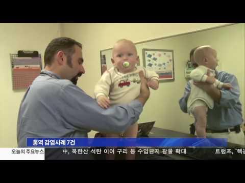 LA카운티 홍역환자 7명 발생 12.23.16 KBS America News