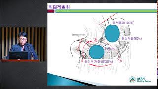 위암의 수술적 치료 미리보기