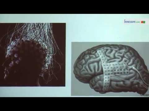 cyberbrain: la tecnologia per la cura di epilessia e paralisi