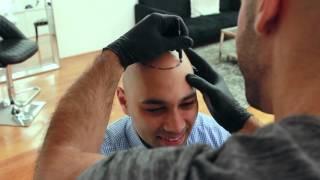 Video Inside Look: Scalp Micropigmentation Treatment - Scalp Micro USA MP3, 3GP, MP4, WEBM, AVI, FLV Maret 2019