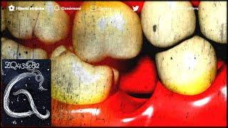 Video ZQ435c82: Pt49
