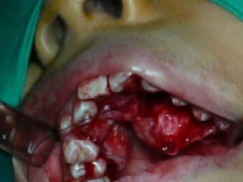 cirugía dental - http://www.mundodentalsur.com/ Cirugia de Canino incluido por Palatino.