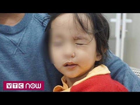 Thời tiết lạnh đột ngột, nhiều trẻ bị liệt mặt, méo miệng - Thời lượng: 68 giây.