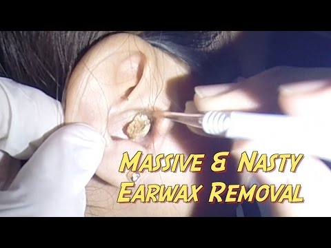 Most Massive & Nasty Earwax Removal Ever!