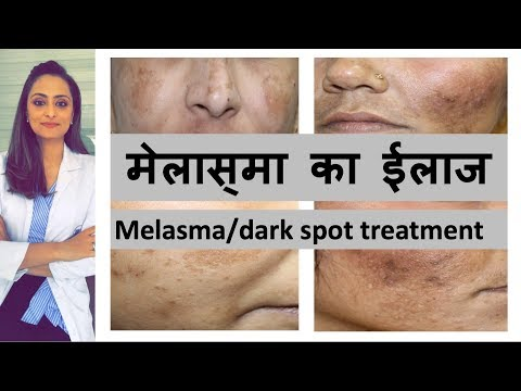 काले दाग का ईलाज | Melasma/ Dark Spots | Pigmentation| Causes & Treatment| Hindi | Dr. Aanchal Panth