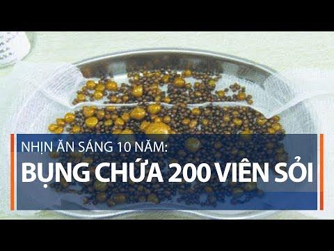 Nhịn ăn sáng 10 năm: Bụng chứa 200 viên sỏi | VTC1 - Thời lượng: 104 giây.