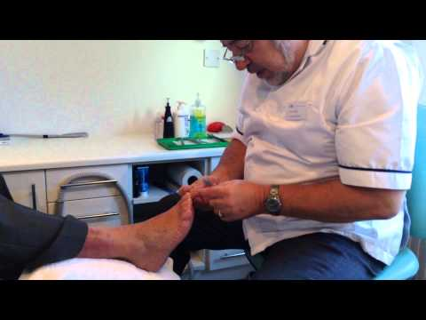 Ian Fowler, Chiropodist at The Therapy Company demonstrates his work.