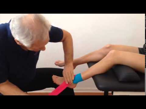 Kinematic Taping - Syndesmosis cruris lesion with Kinesio Tape