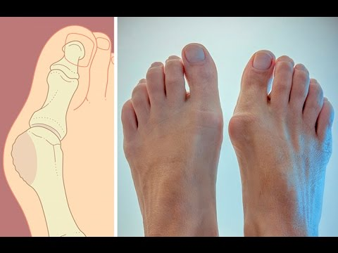 Как избавиться от косточки на ноге? Советы Елены Малышевой (видео)
