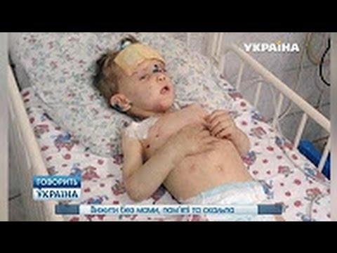 🔥 Выжить без мамы памяти и скальпа ¦ Говорит Украина - DomaVideo.Ru