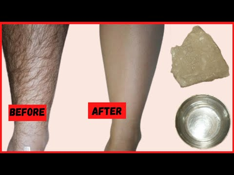 Video HOW TO REMOVE UNWANTED HAIR Permanently At Home | using alum - पाएं अनचाहे बालो से छुटकारा download in MP3, 3GP, MP4, WEBM, AVI, FLV January 2017