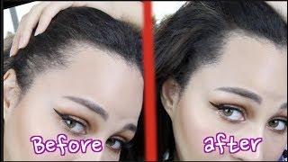 Video Fix Your Thin Hairline   Korean Hair Cushion MP3, 3GP, MP4, WEBM, AVI, FLV Oktober 2018
