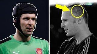 Download Video Tahukah Kamu Kenapa Petr Cech Mengenakan Helm Di Kepalanya Saat Bertanding? MP3 3GP MP4