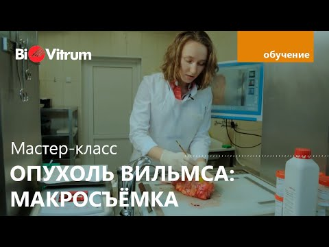Макросъемка нефробластомы (опухоль Вильмса)