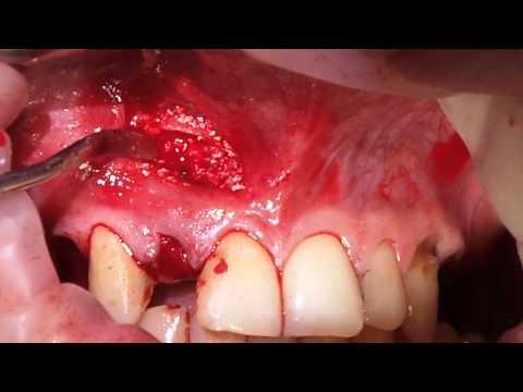 Удаление одонтогенной кисты верхней челюсти хирургическим путем. Часть 2
