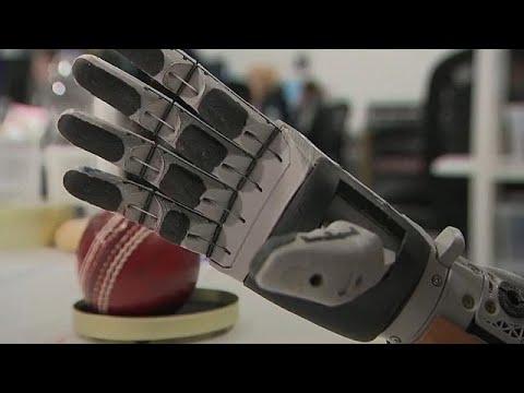Βιονικό χέρι για τον Σκοτσέζο Λουκ Σκαϊγουόκερ