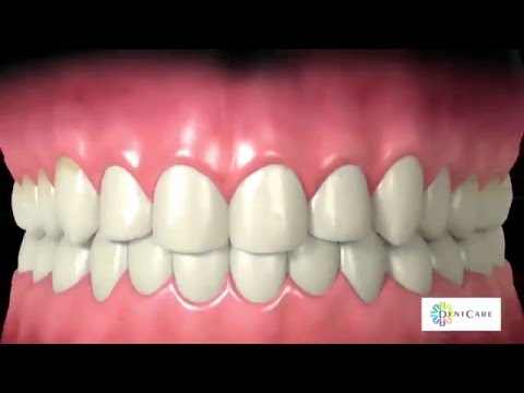 Dental Implants in Dubai, Your Best Option for Replacing Missing Teeth