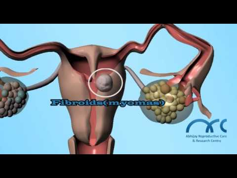 Hysterosalpingogram Procedure | Hysterosalpingogram Video - ARC Chennai