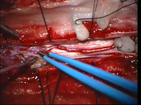 Arteriovenous Malformation Of The Spinal Cord