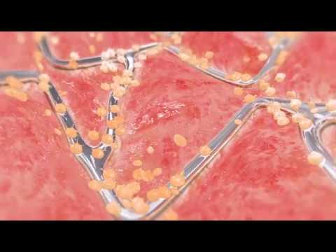 Scar tissue forming inside a stent