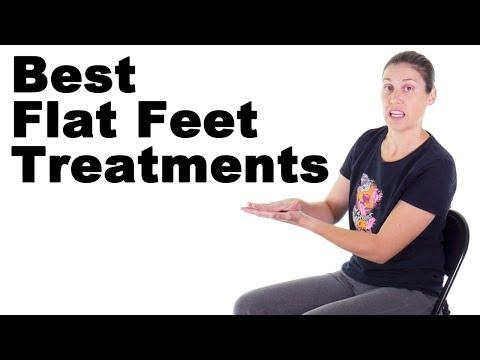 7 Best Flat Feet Treatments - Ask Doctor Jo