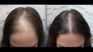 Video 2102 FU's. Hair Transplant by FUE Technique. Female alopecia. Injertocapilar.com. 758/2012 MP3, 3GP, MP4, WEBM, AVI, FLV Juli 2018