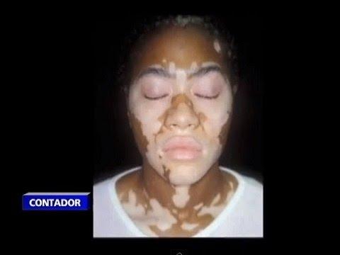 blanqueamiento genital - Visite http://www.ntn24.com/ - Las mujeres en Senegal quieren ser blancas, un capricho bastante complejo de complacer, dado que la mayoría de la población de...