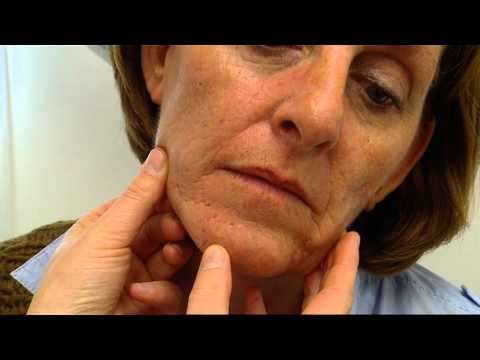 Acne littekens behandelen met fractional CO2 laser.wmv