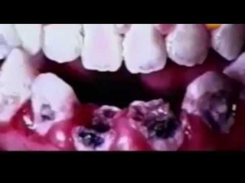 Зубная паста - фторид натрия, Усилитель вкуса - глутамат натрия
