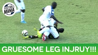 Honduras' Luis Garrido suffers a gruesome leg injury during a play vs. Mexico for the CONCACAF WCQ 2018. --- CONCACAF...