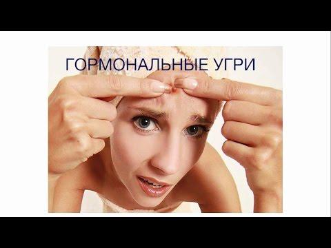 Гормональные угри: причины и симптомы