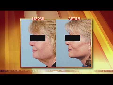 Look Younger Without Dramatic Plastic Surgery 4/28/15