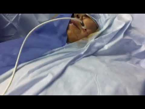 Fluroscopy guided lt gasserian radiofrequency gangliotomy in lt with typical lt trigeminal neuralgia
