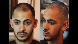 Video How To Fix Receding Hairline Naturally | No Pills, Spray Enhancements or tattoos MP3, 3GP, MP4, WEBM, AVI, FLV Februari 2019