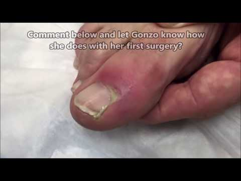 Dr. John Gilmore: Toe Infection Removal