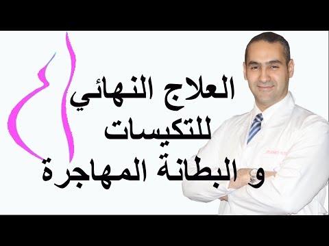 العلاج النهائي للتكيسات و البطانة المهاجرة - د. احمد حسين