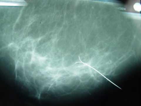 Biopsias y calcificaciones mamarias