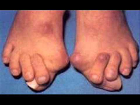 worst bunion pictures. nasty looking bunions on feet